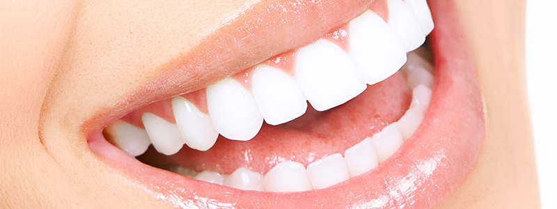 Most Common Dental Problems, Cosmetic Dentistry Procedure, Cosmetic Dentistry in Rajkot, Teeth Whitening in Rajkot
