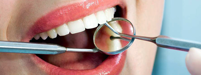 Mouth Care, Preventive Dentistry, Preventive Dentistry, Pyorrhea, Gum Disease, Tooth Decay, Preventive Dental Care