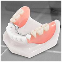 Cast Partial Denture