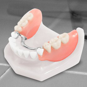 Cast Partial Dentures