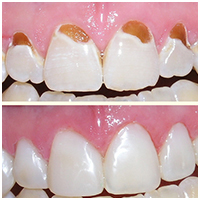 Composite Tooth Colored Fillings, Tooth Colored Fillings, Composite Tooth Fillings