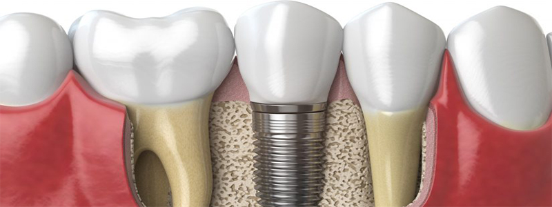 Dental Implants 800 x 300, Dental Implants in India, Dental Implants in Rajkot, Dental Implant in Rajkot