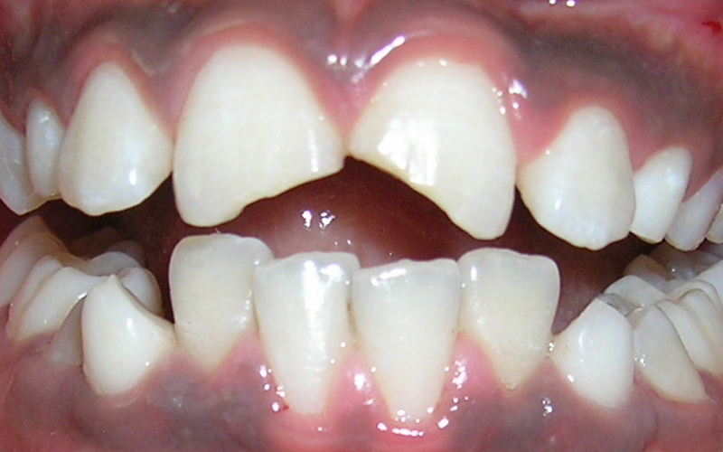 Best Broken Tooth Treatment, Chipped Tooth
