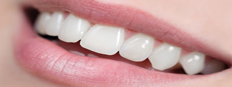 Veneers - Cosmetic Dentistry, Cosmetic Dentistry Procedures