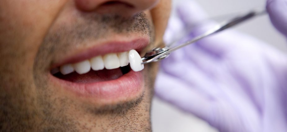 Veneers on Teeth, Dental Veneers in Rajkot, Veneers in Rajkot