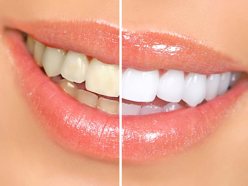 Cosmetic Dentistry, Cosmetic Dentistry in Rajkot