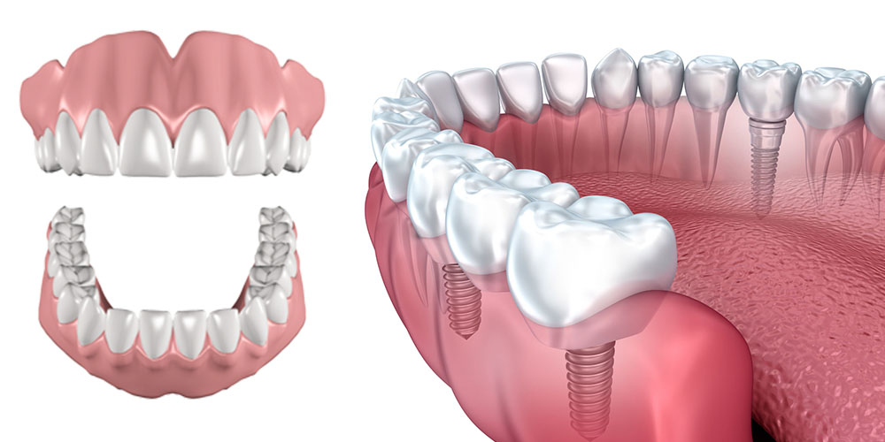 Advantages of Implants over Dentures