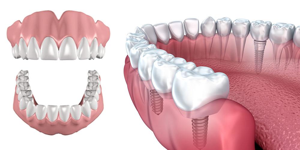 Advantages of Implants over Dentures